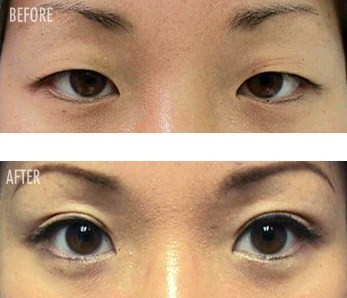 Asian eyes before and after